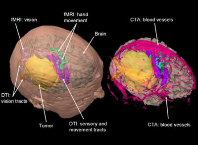 3d-brain-mapping