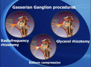Gasserian Ganglion Procedures