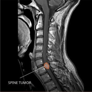 Ependymoma MRI Spin tumor