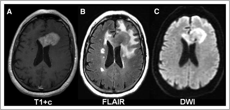 Primary-CNS-Lymphoma