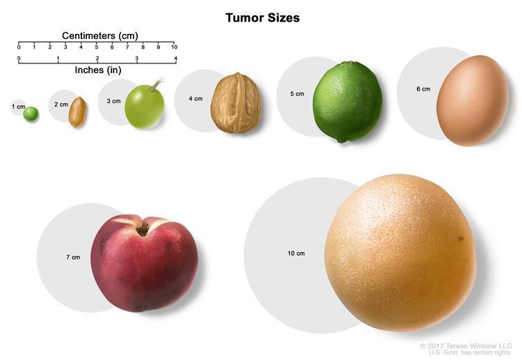 tumor-sizes