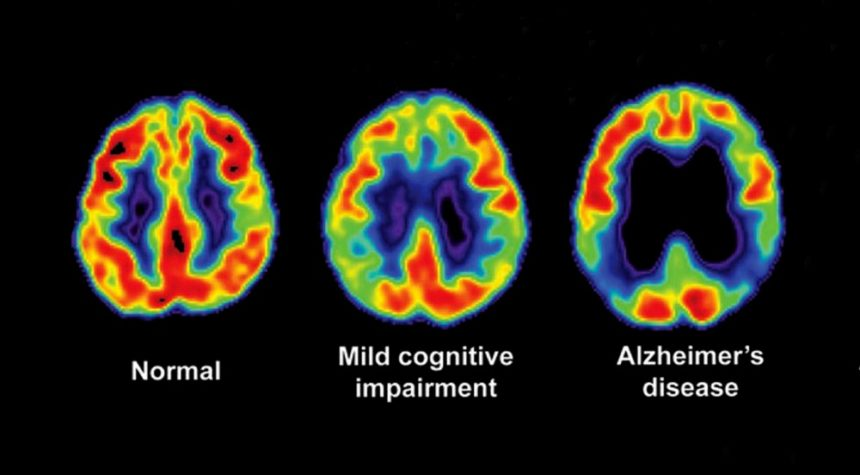 Amyloid PET Scan for Diagnosis of Cognitive Impairment and Dementia