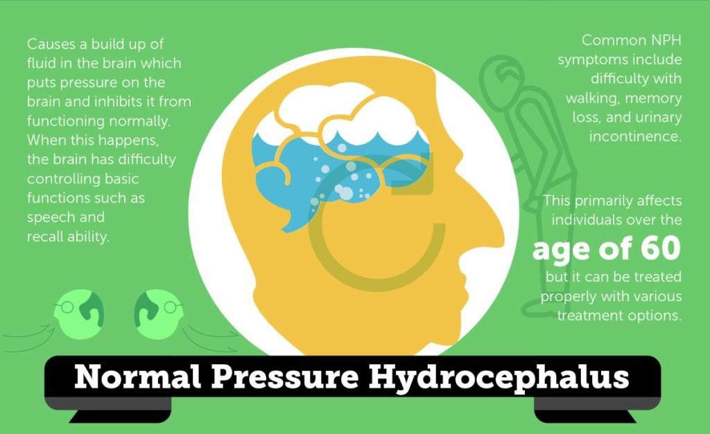 Normal-Pressure Hydrocephalus